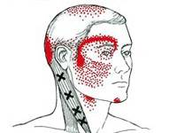 Headache Physical Therapy in Saddle Brook, NJ Image